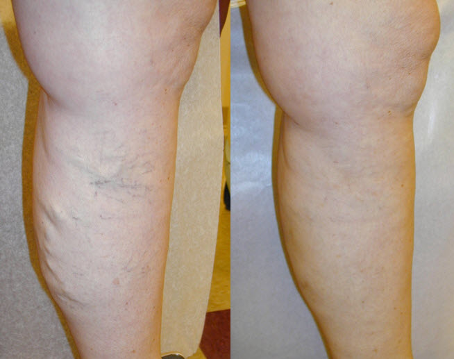 Spider vein removal Before and after