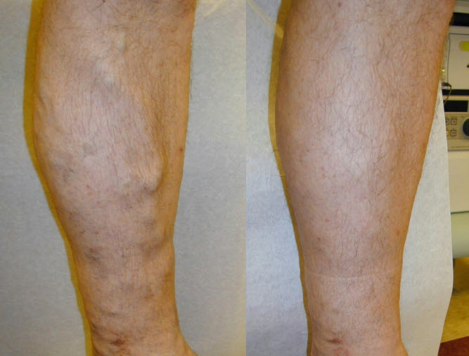 Varicose vein removal Before and after