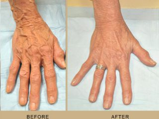 Hand vein removal