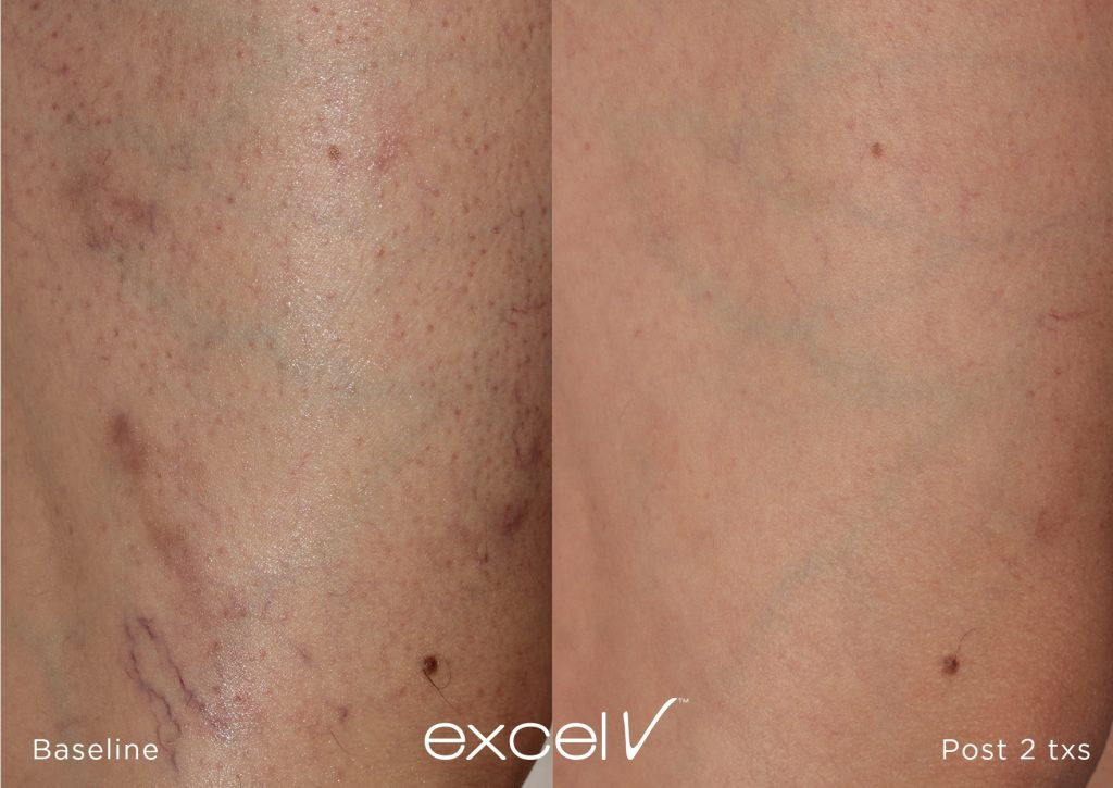 Leg vein removal before and after