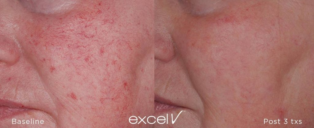 Facila vein removal before and after