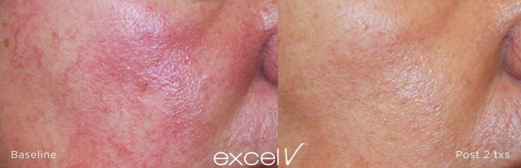 facial vein before and after